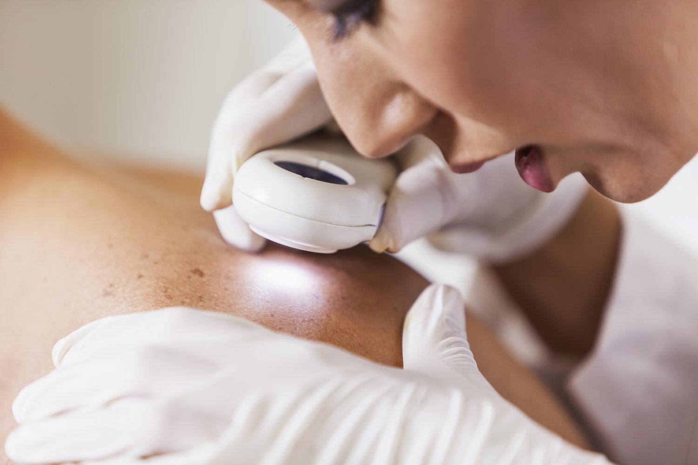 Câncer de pele: tipos, causas e prevenção