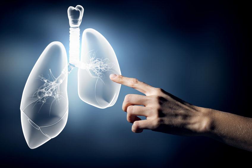 Câncer no pulmão — diagnóstico e tratamentos