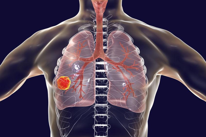 Conheça os principais sintomas do câncer no pulmão
