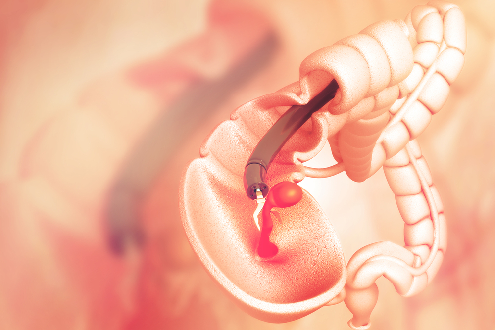 Cirurgia para câncer de cólon: saiba como é realizada