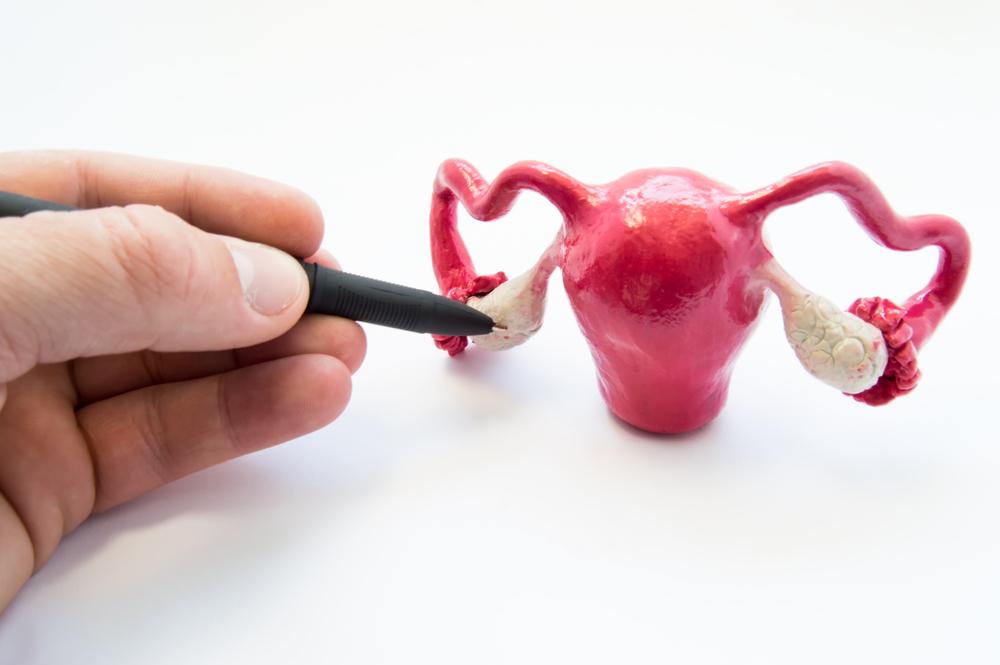 Cirurgia de câncer de ovário