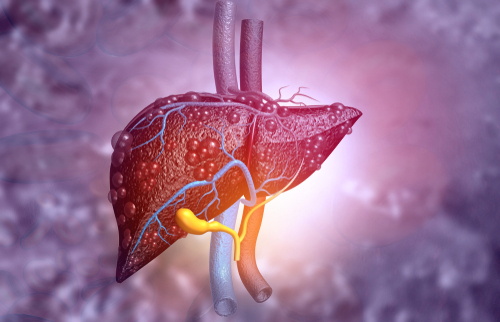 Conheça as causas das metástases hepáticas