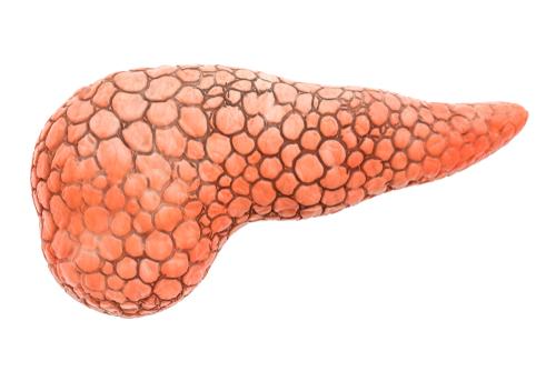 Os tipos de câncer de pâncreas