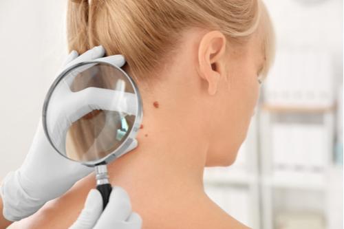 Teste ABCDE: aprenda a identificar o câncer de pele