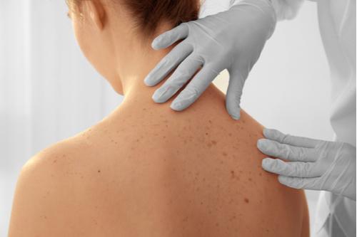 4 dicas para prevenir o câncer de pele